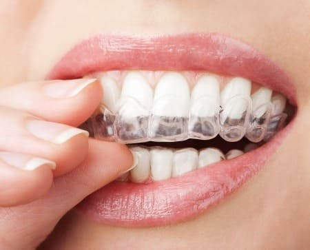 5 Ways to Simplify Your Invisalign Treatment