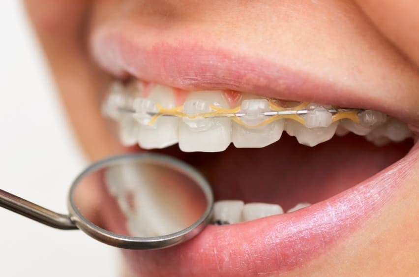 Can Food Stain My Braces?