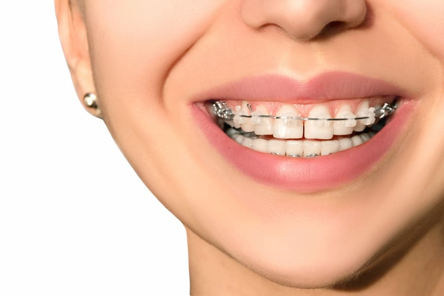 Ceramic Braces vs. Metal Braces:  What Are The Advantages?