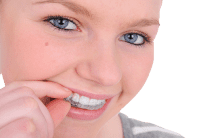 Invisalign Teen Can Give Your Young Adult a Confidence Boost in School