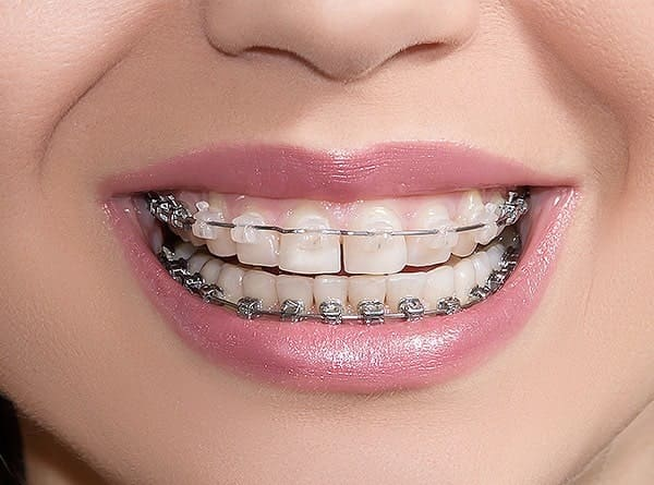 Ceramic Clear Braces LA