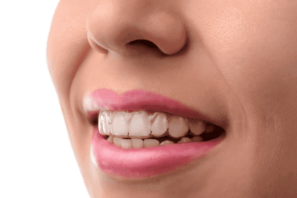Do Invisalign Trays Smell Bad?