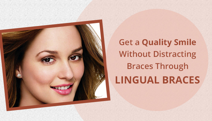 Get a Quality Smile Without Distracting Braces Through Lingual Braces
