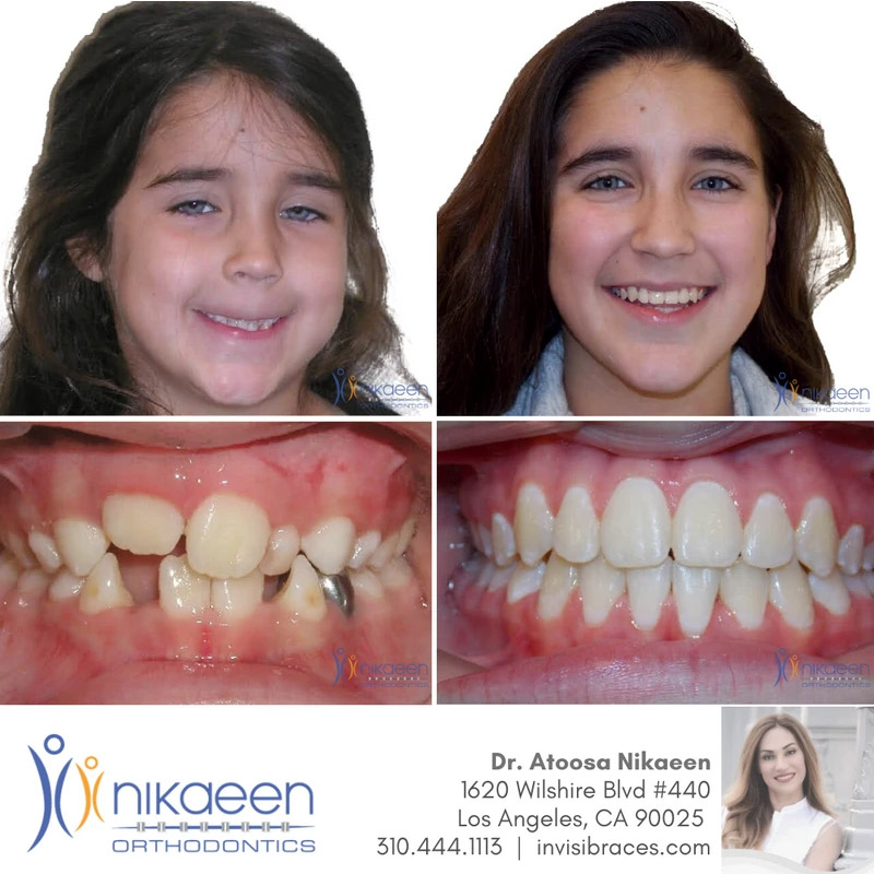 Image of before and after patient 1