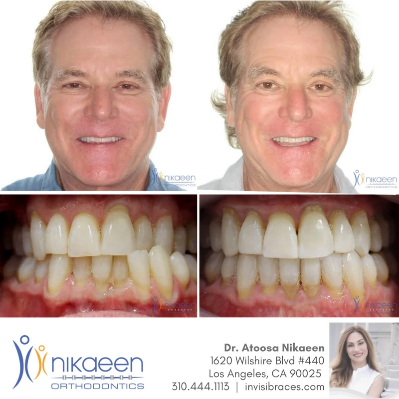 Image of before and after patient 10