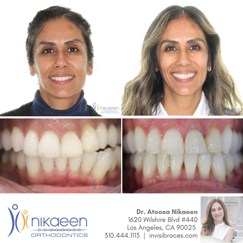 Image of before and after patient 12