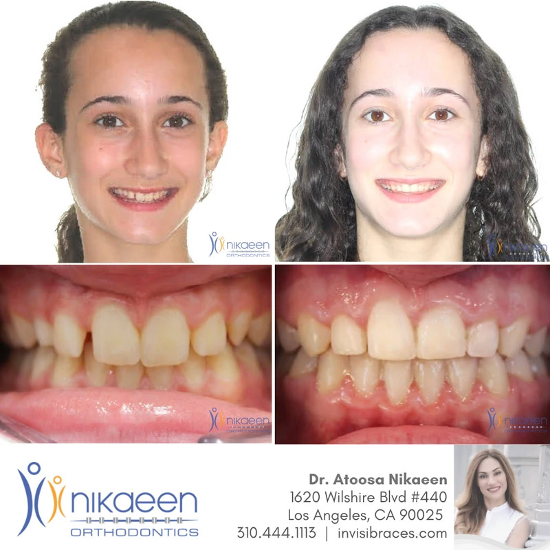 Image of before and after patient 13