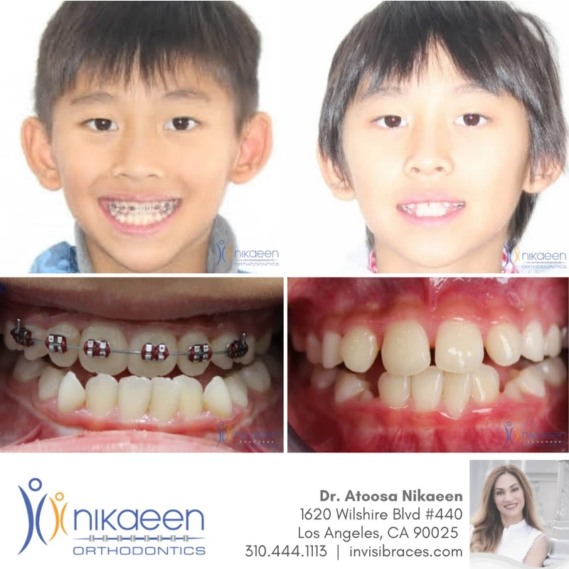 Image of before and after patient 15