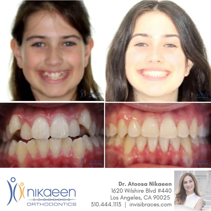 Image of before and after patient 16