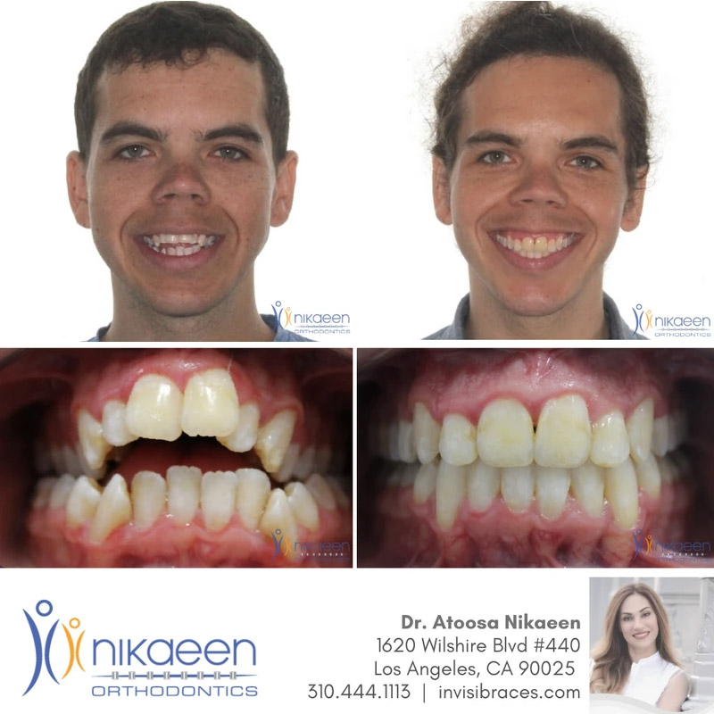 Image of before and after patient 17