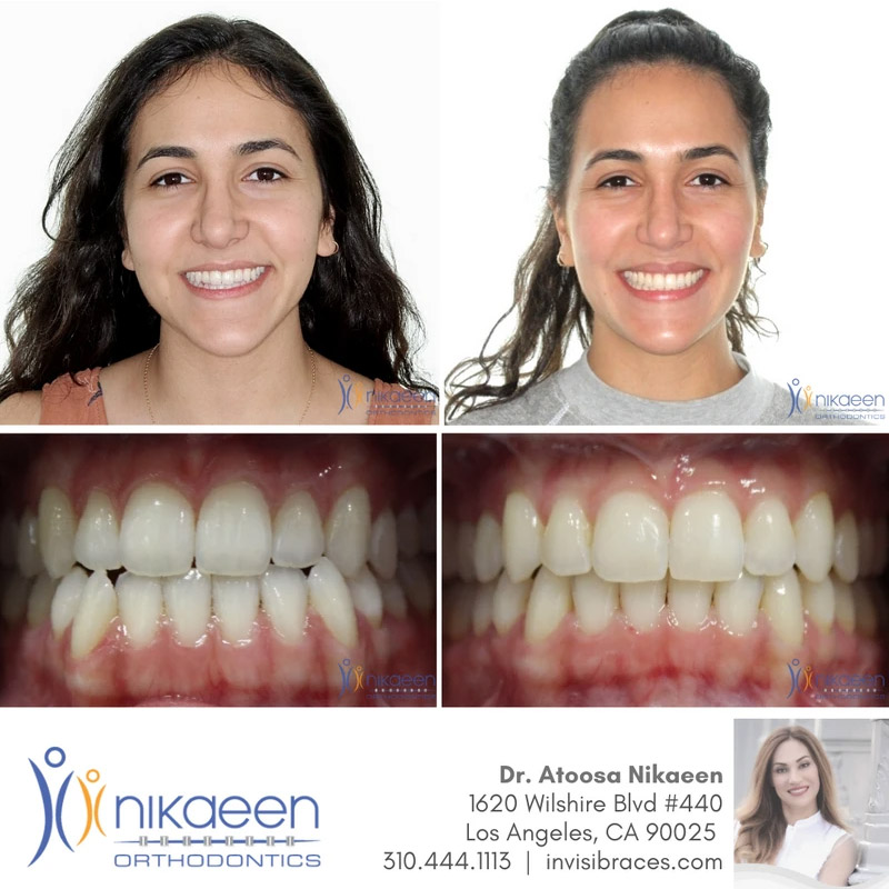Image of before and after patient 18