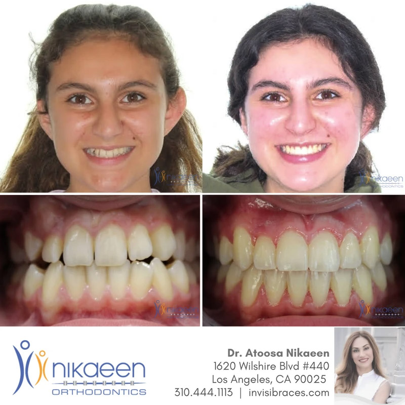 Image of before and after patient 19