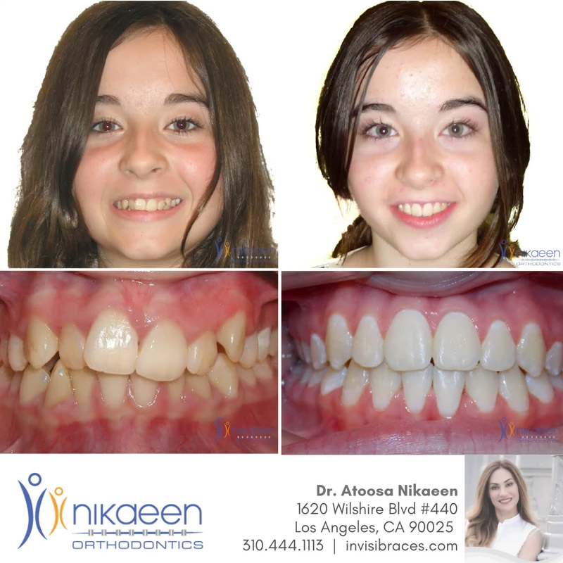 Image of before and after patient 2