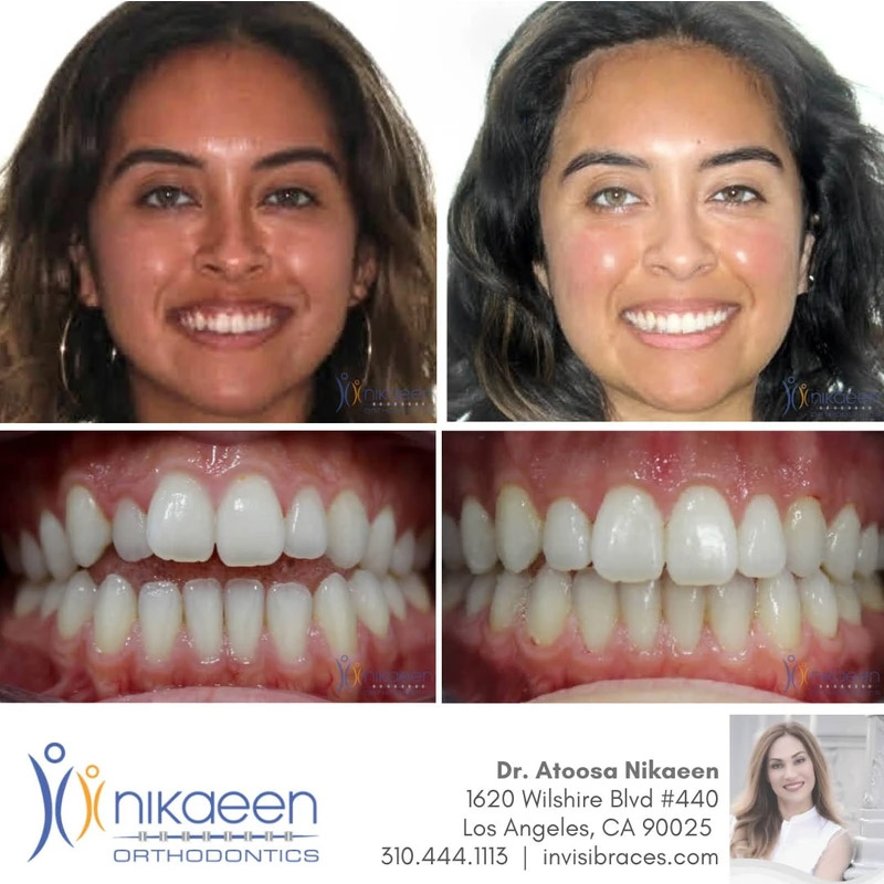 Image of before and after patient 20