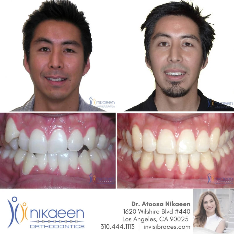 Image of before and after patient 21