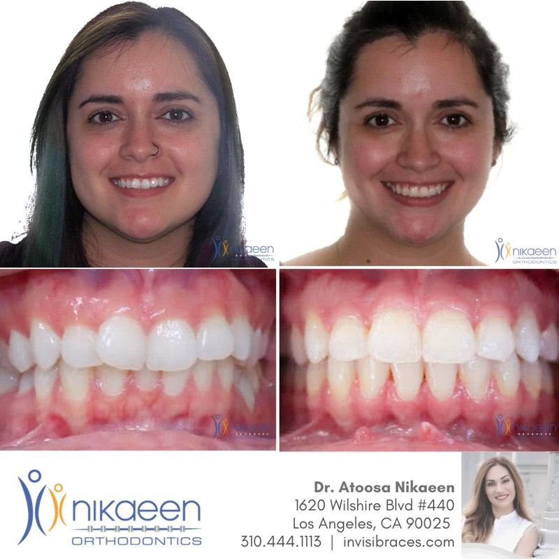 Image of before and after patient 22