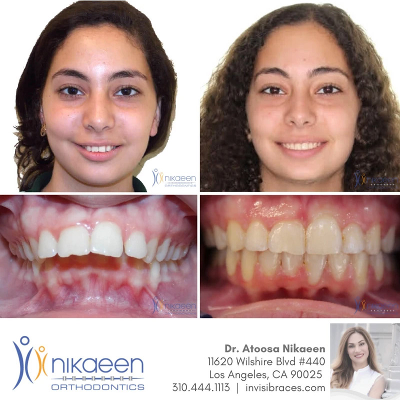 Image of before and after patient 23
