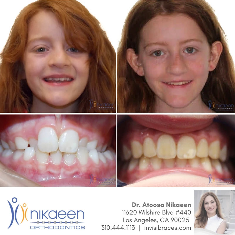 Image of before and after patient 3