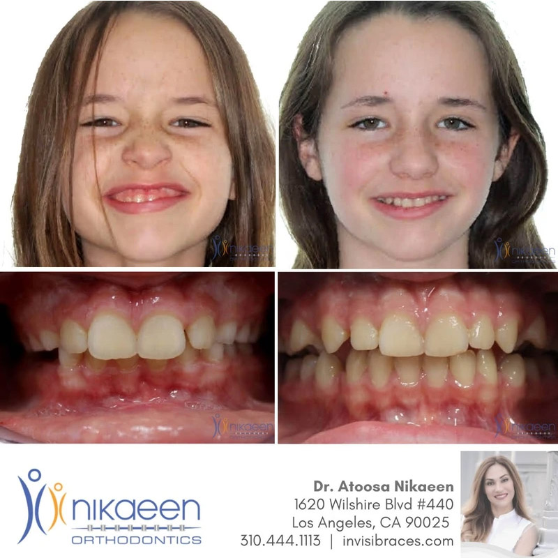 Image of before and after patient 4