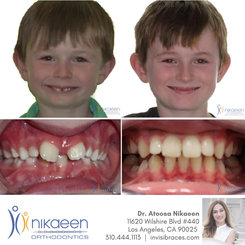 Image of before and after patient 6