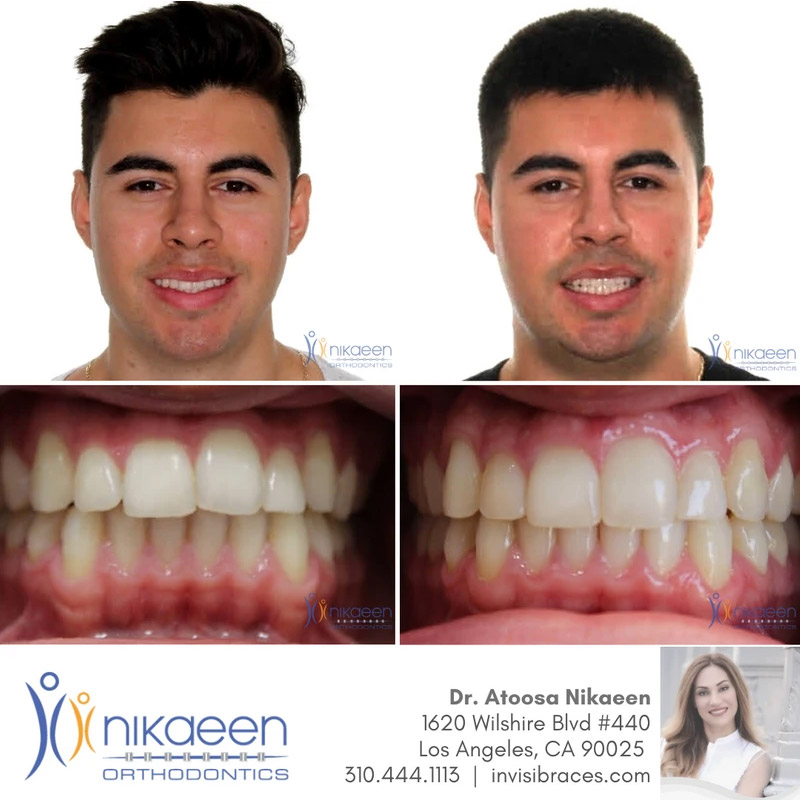 Image of before and after patient 7