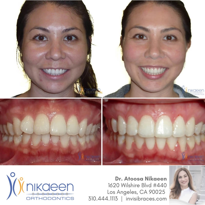 Image of before and after patient 8