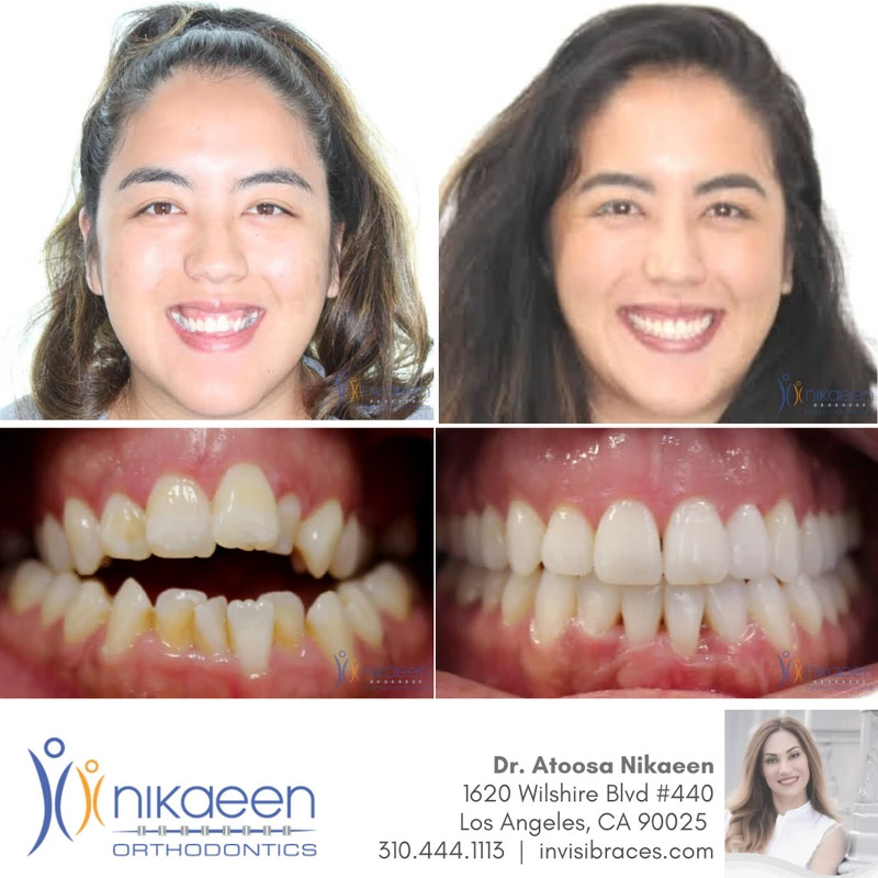 Image of before and after patient 9