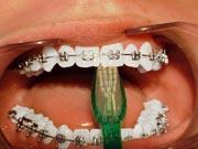 Image of Brush Teeth with Braces