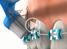 Image of Brushing and flossing your teeth Click to See Video