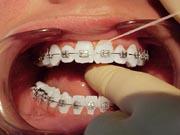 Image of floss between braces