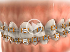 Image of Flossing braces click to see video