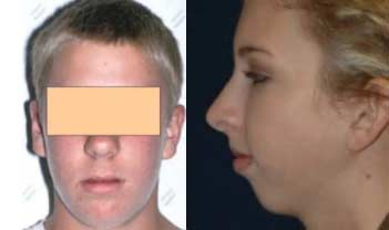 Long Face Syndrome and Recessive Chin