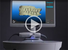 Image of our mouth is scanned with a radiation free laser