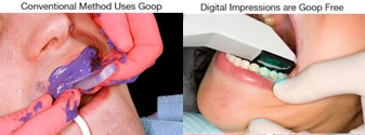 Image of before and after iTero Digital Impression System treatment