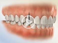 Image of Orthodontic disorders Click to See Video
