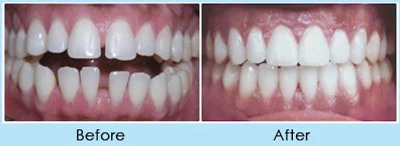 TAD in Orthodontics can help with the following issue