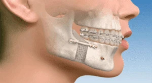 ORTHOGNATHIC SURGERY LOS ANGELES